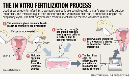 in-vitro-fertilization2